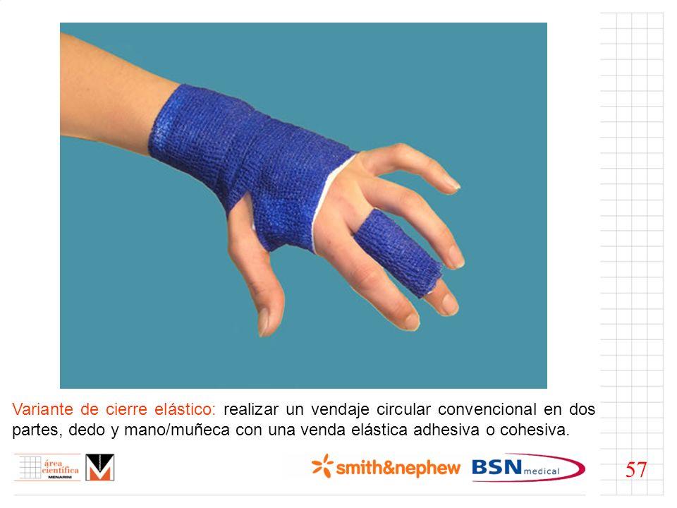 Variante de cierre elástico: realizar un vendaje circular convencional en dos partes, dedo y mano/muñeca con una venda elástica adhesiva o cohesiva.