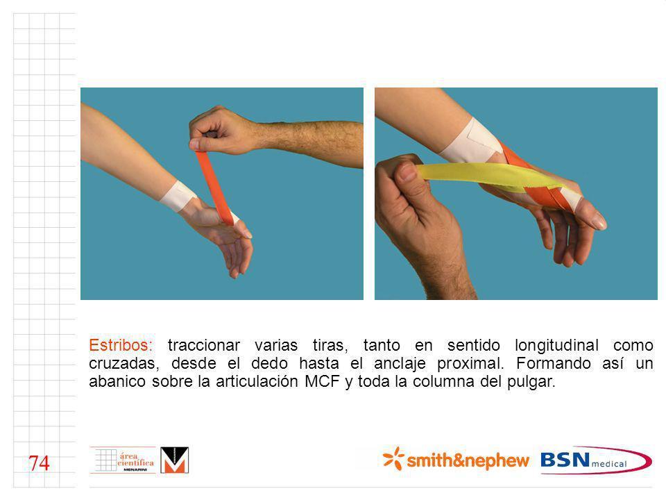 Estribos: traccionar varias tiras, tanto en sentido longitudinal como cruzadas, desde el dedo hasta el anclaje proximal. Formando así un abanico sobre la articulación MCF y toda la columna del pulgar.