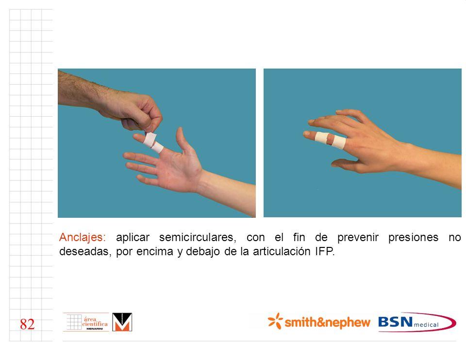 Anclajes: aplicar semicirculares, con el fin de prevenir presiones no deseadas, por encima y debajo de la articulación IFP.