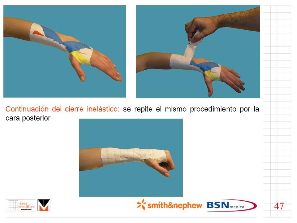 Continuación del cierre inelástico: se repite el mismo procedimiento por la cara posterior