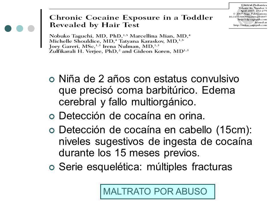 Detección de cocaína en orina.