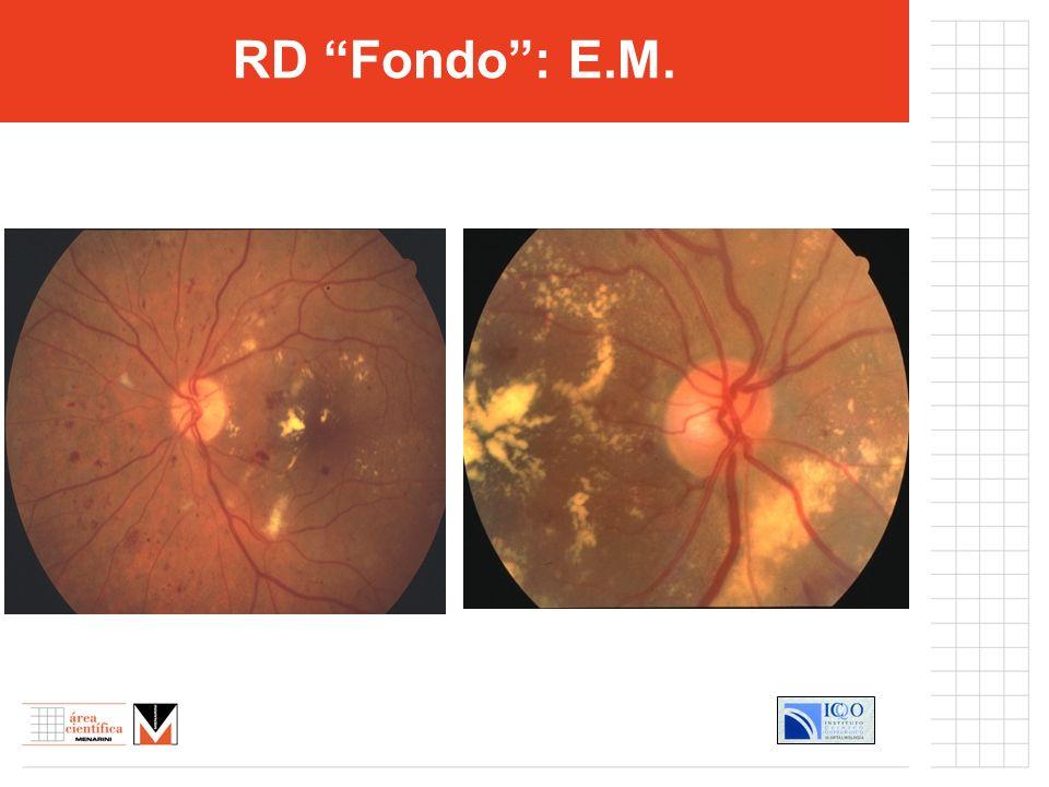 RD Fondo : E.M.