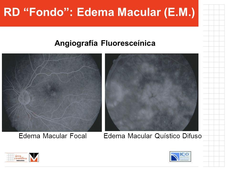 RD Fondo : Edema Macular (E.M.) Angiografía Fluoresceínica