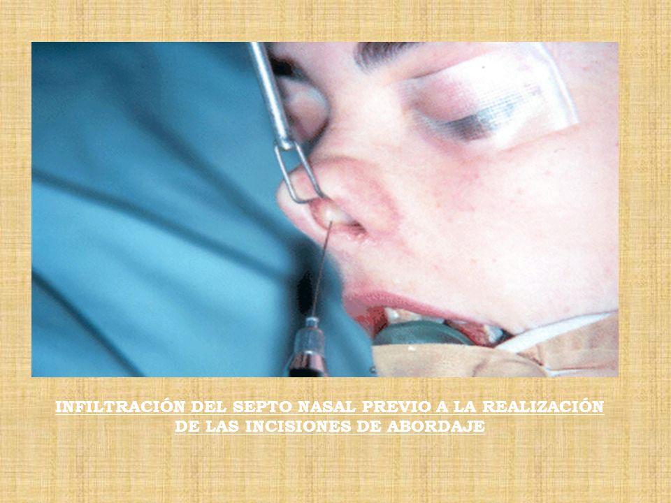 INFILTRACIÓN DEL SEPTO NASAL PREVIO A LA REALIZACIÓN DE LAS INCISIONES DE ABORDAJE
