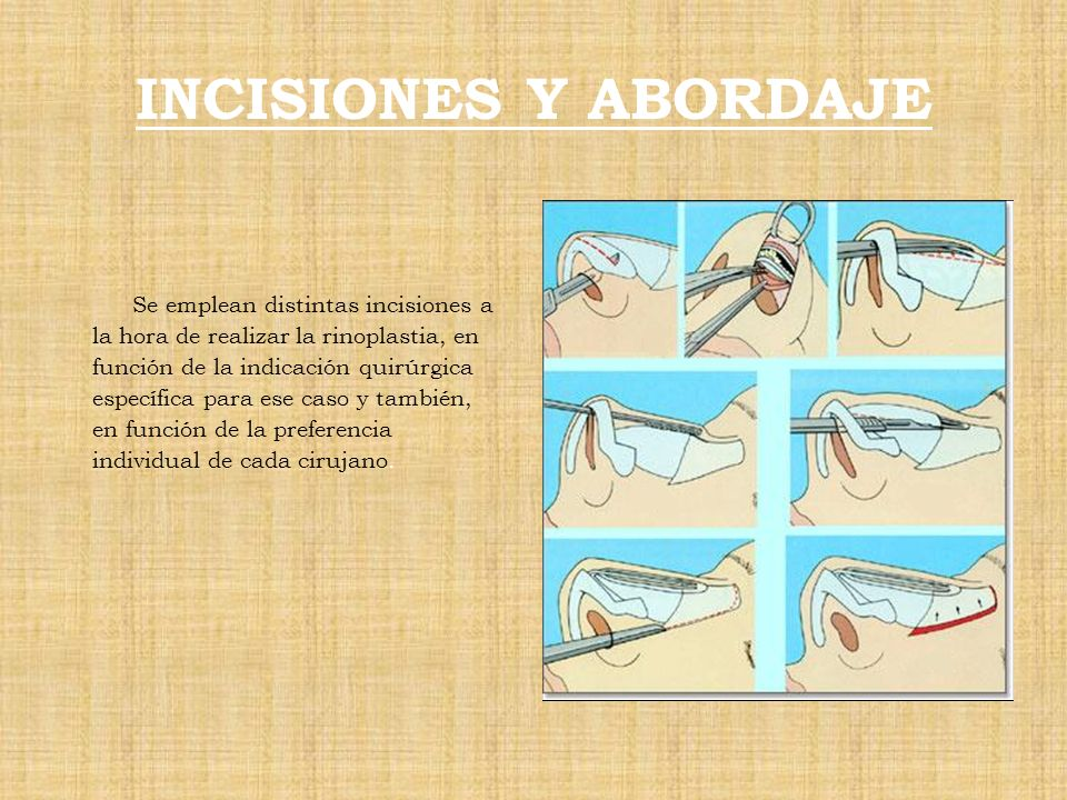 INCISIONES Y ABORDAJE