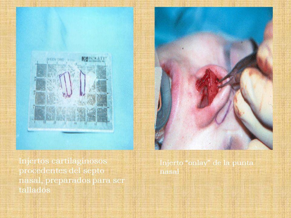 Injertos cartilaginosos procedentes del septo nasal, preparados para ser tallados
