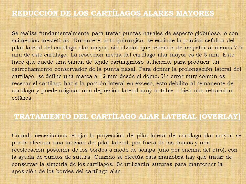 REDUCCIÓN DE LOS CARTÍLAGOS ALARES MAYORES