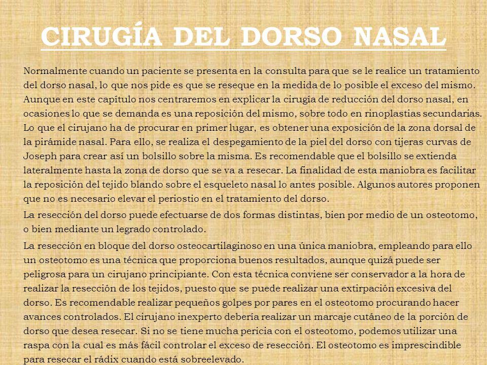 CIRUGÍA DEL DORSO NASAL