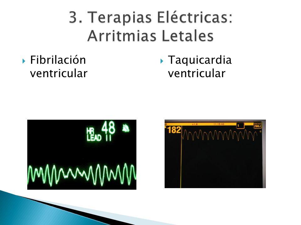 3. Terapias Eléctricas: Arritmias Letales