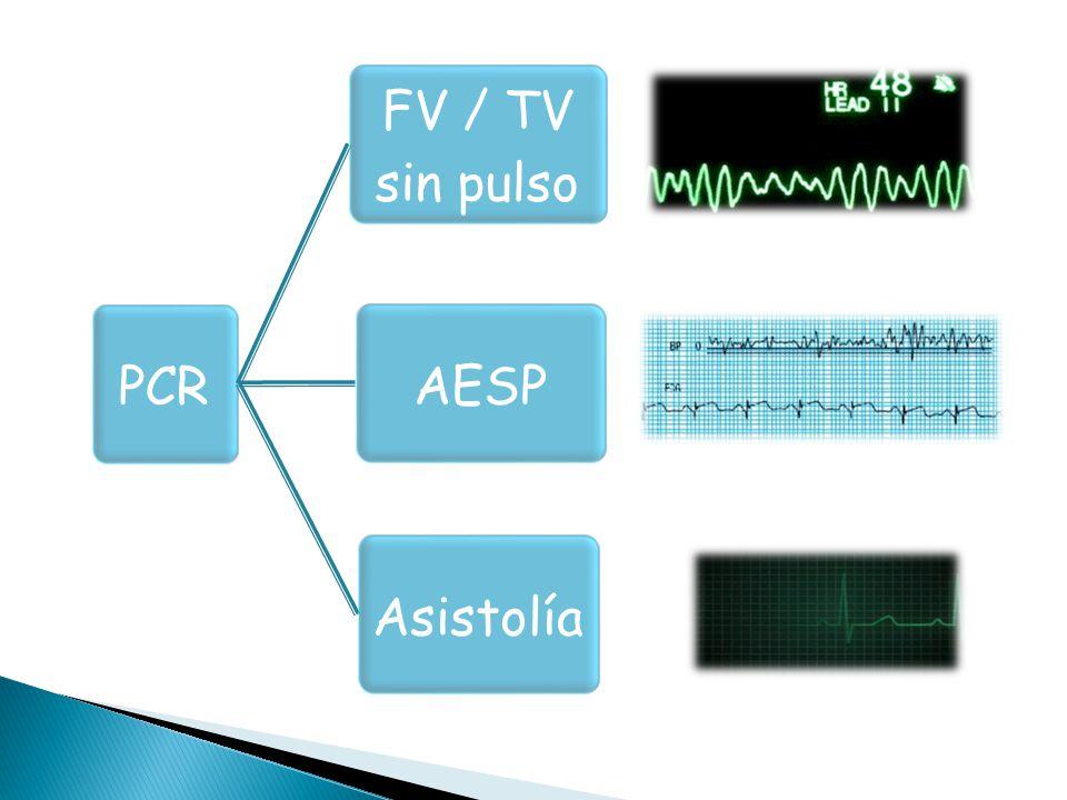 PCR FV / TV sin pulso. AESP. Asistolía.