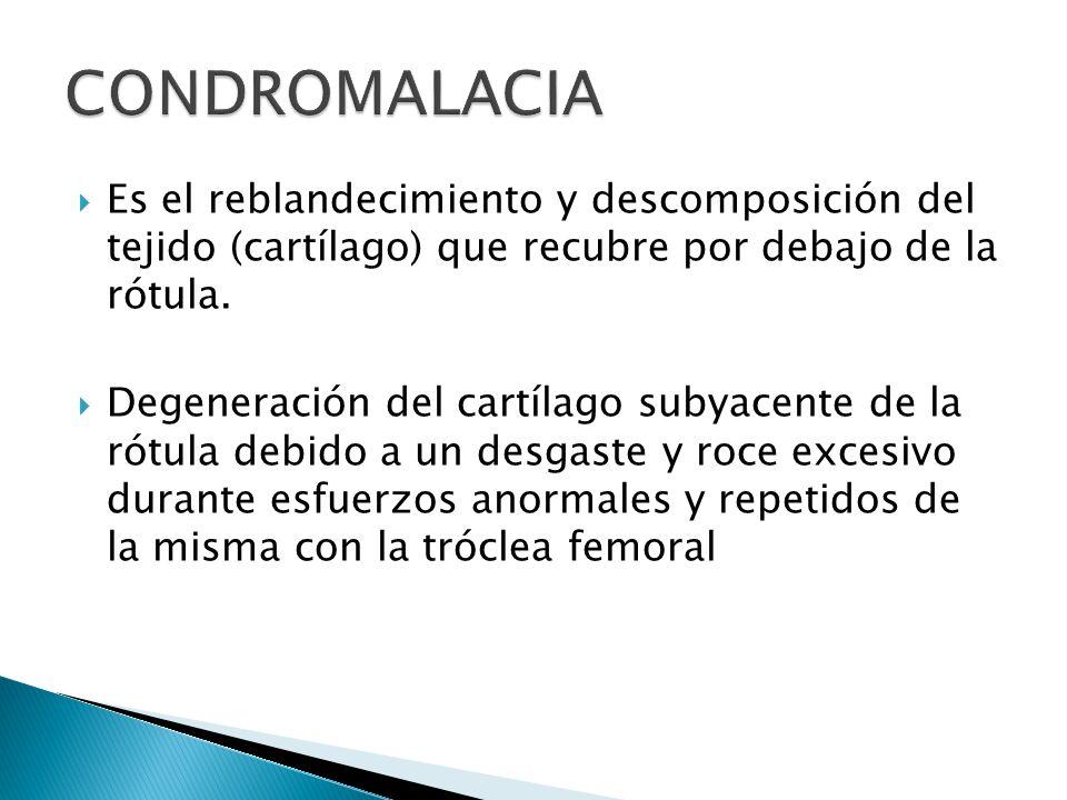 CONDROMALACIA Es el reblandecimiento y descomposición del tejido (cartílago) que recubre por debajo de la rótula.