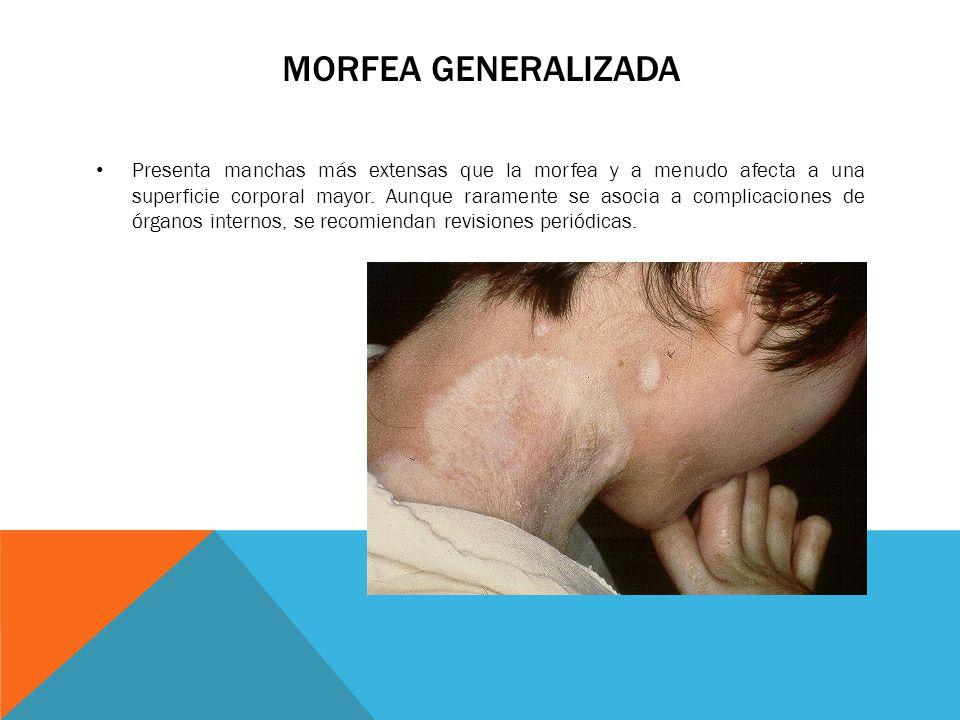 MORFEA GENERALIZADA
