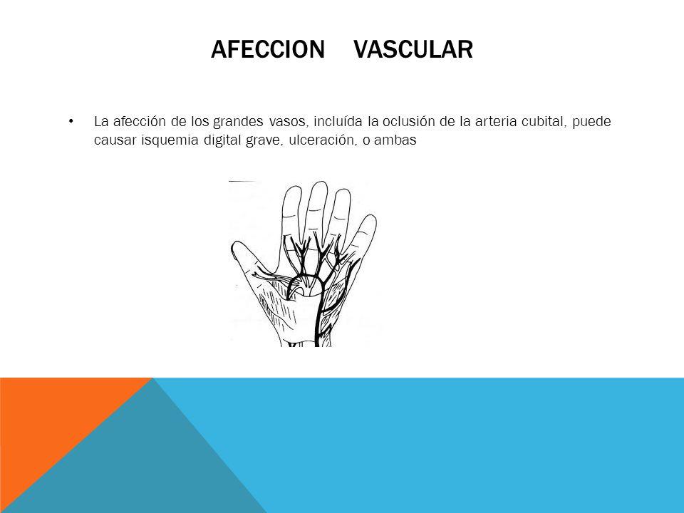 Afeccion vascular