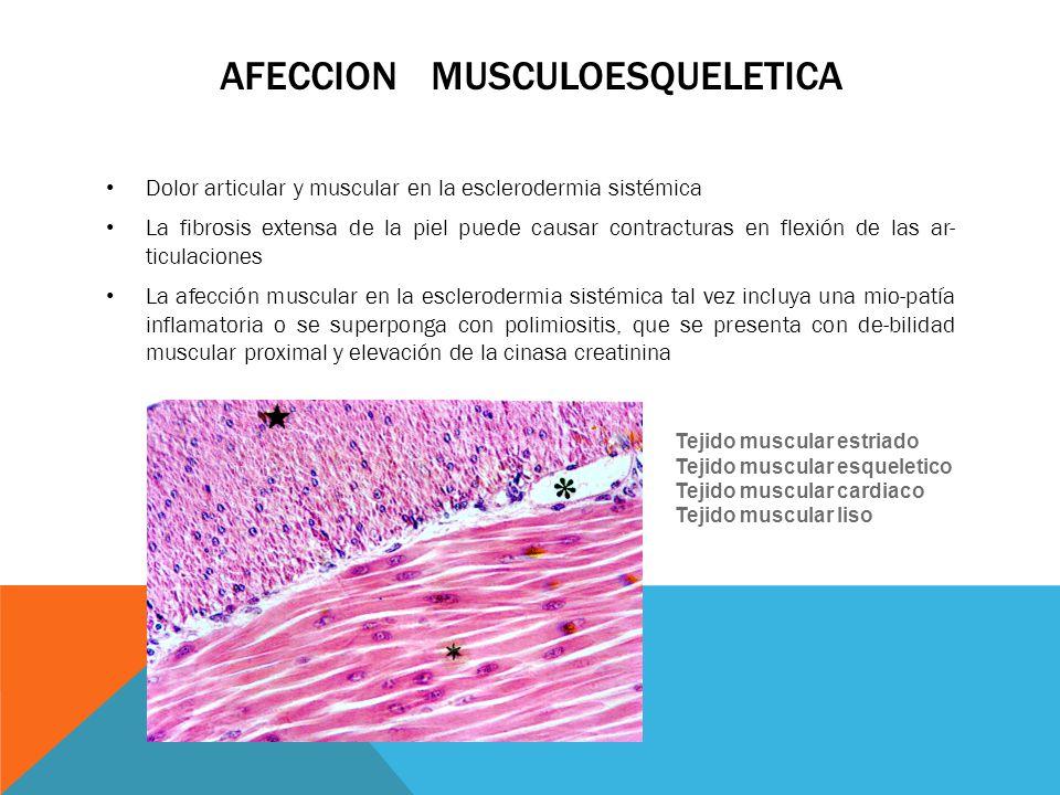 Afeccion musculoesqueletica