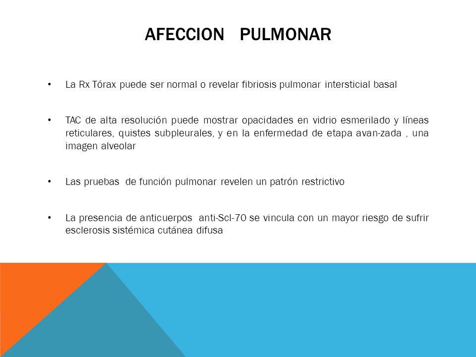 AFECCION PULMONAR La Rx Tórax puede ser normal o revelar fibriosis pulmonar intersticial basal.
