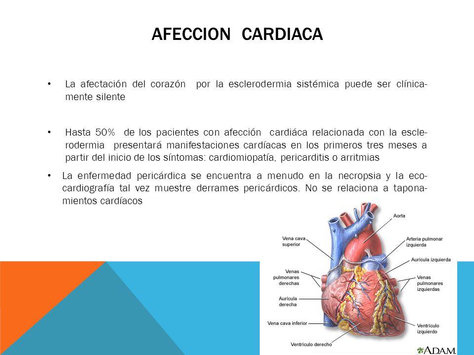 Afeccion cardiaca La afectación del corazón por la esclerodermia sistémica puede ser clínica- mente silente.