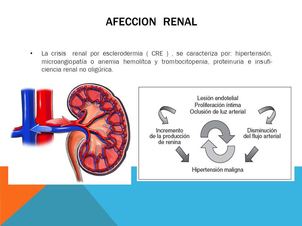 Afeccion renal