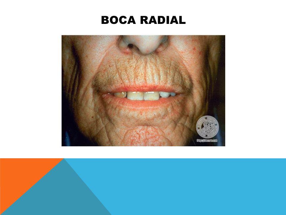 Boca radial