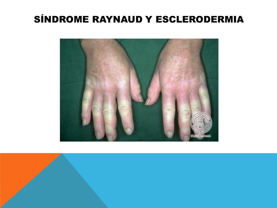 Síndrome raynaud y esclerodermia