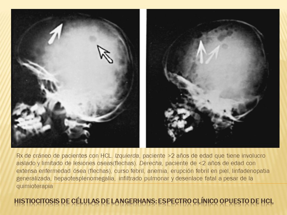 Rx de cráneo de pacientes con HCL
