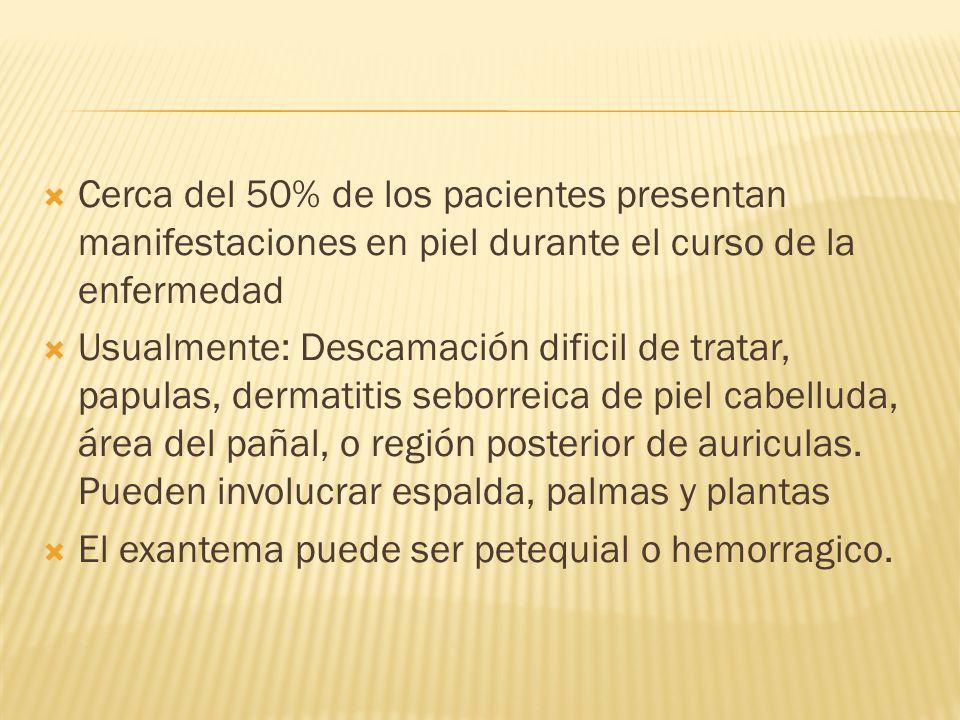Cerca del 50% de los pacientes presentan manifestaciones en piel durante el curso de la enfermedad
