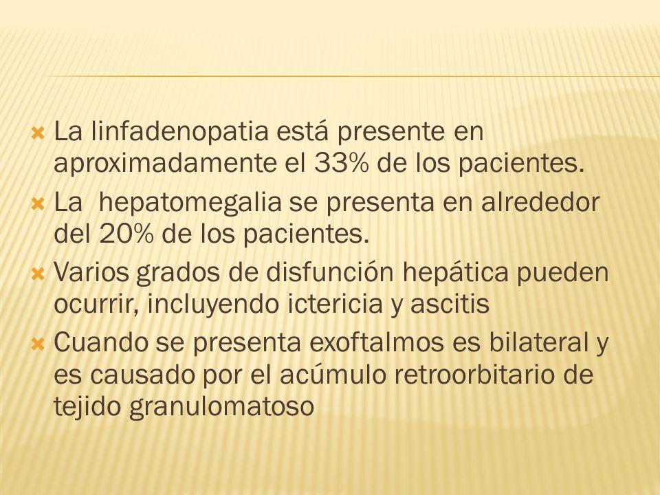 La linfadenopatia está presente en aproximadamente el 33% de los pacientes.