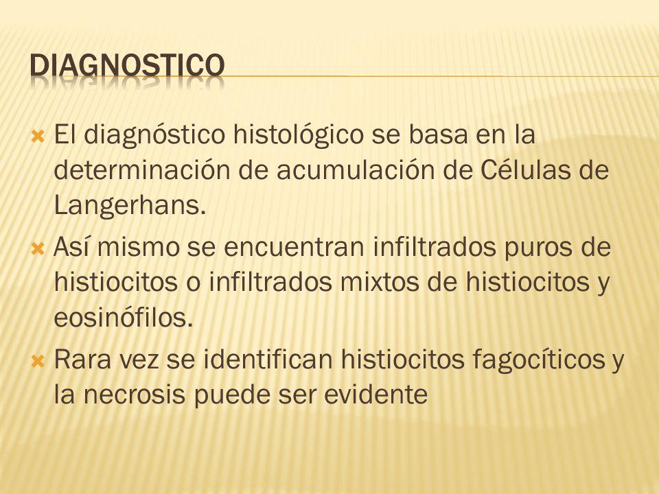 Diagnostico El diagnóstico histológico se basa en la determinación de acumulación de Células de Langerhans.