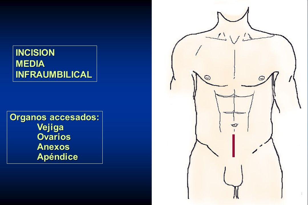 INCISION MEDIA INFRAUMBILICAL Organos accesados: Vejiga Ovarios Anexos Apéndice