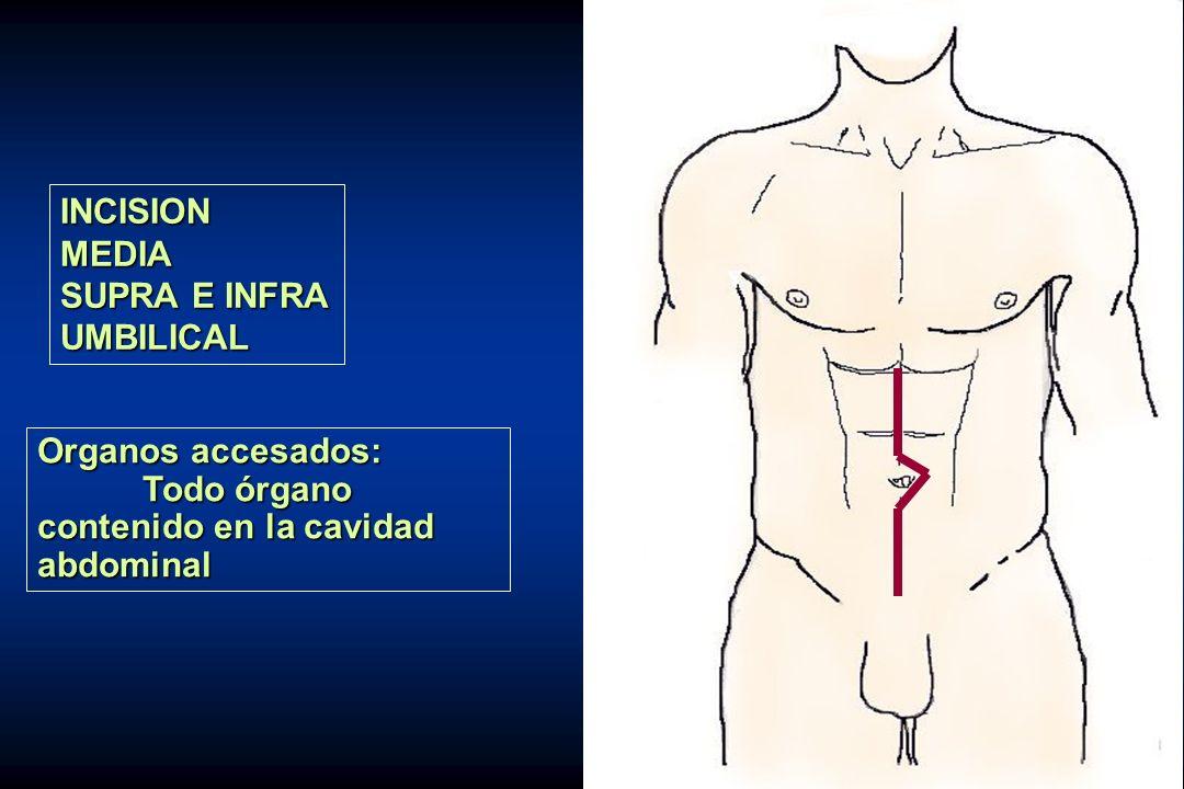 INCISION MEDIA. SUPRA E INFRA. UMBILICAL. Organos accesados: Todo órgano. contenido en la cavidad.