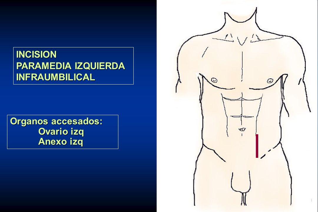 INCISION PARAMEDIA IZQUIERDA INFRAUMBILICAL Organos accesados: Ovario izq Anexo izq