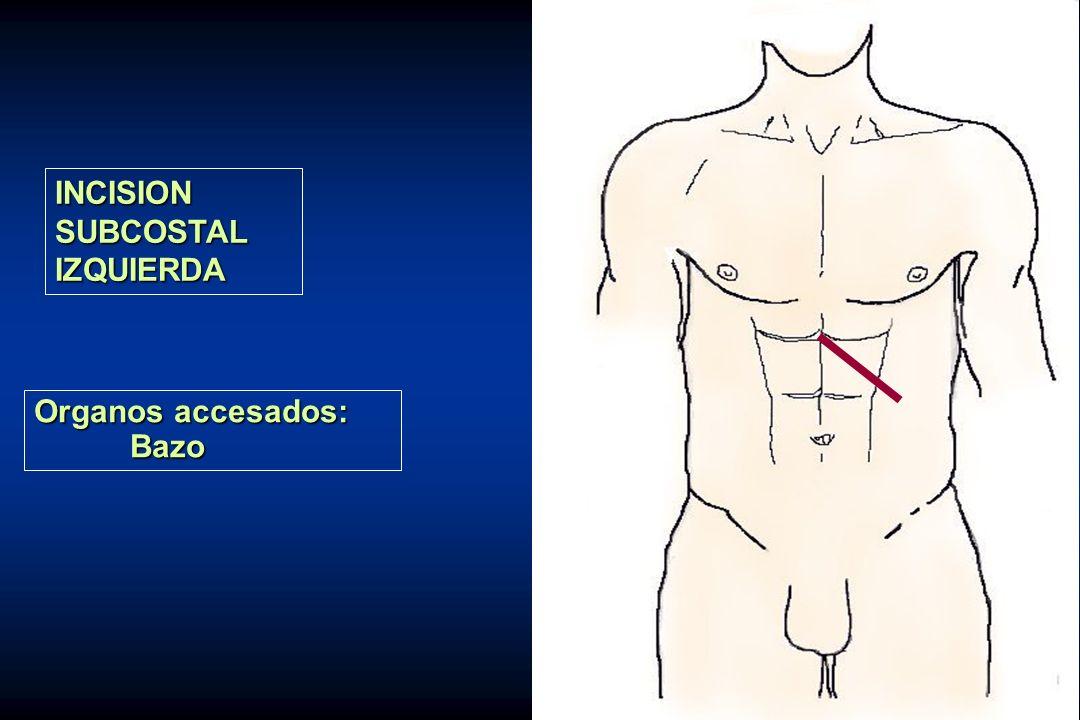 INCISION SUBCOSTAL IZQUIERDA Organos accesados: Bazo