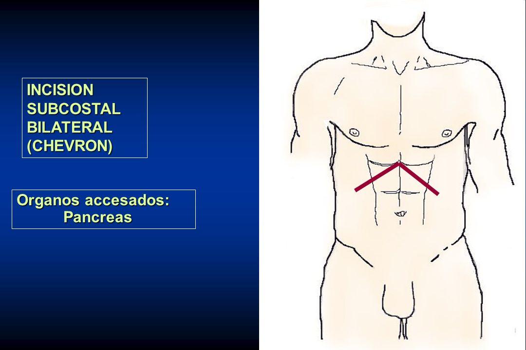 INCISION SUBCOSTAL BILATERAL (CHEVRON) Organos accesados: Pancreas
