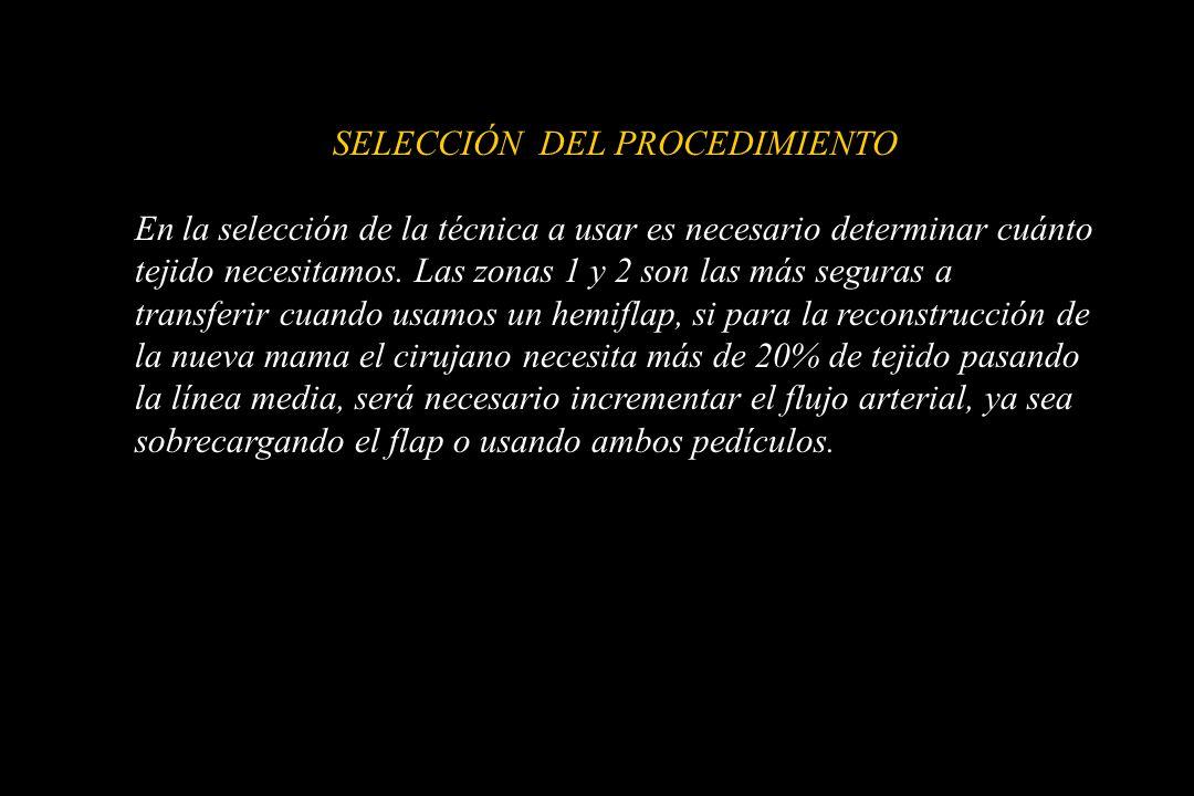 SELECCIÓN DEL PROCEDIMIENTO