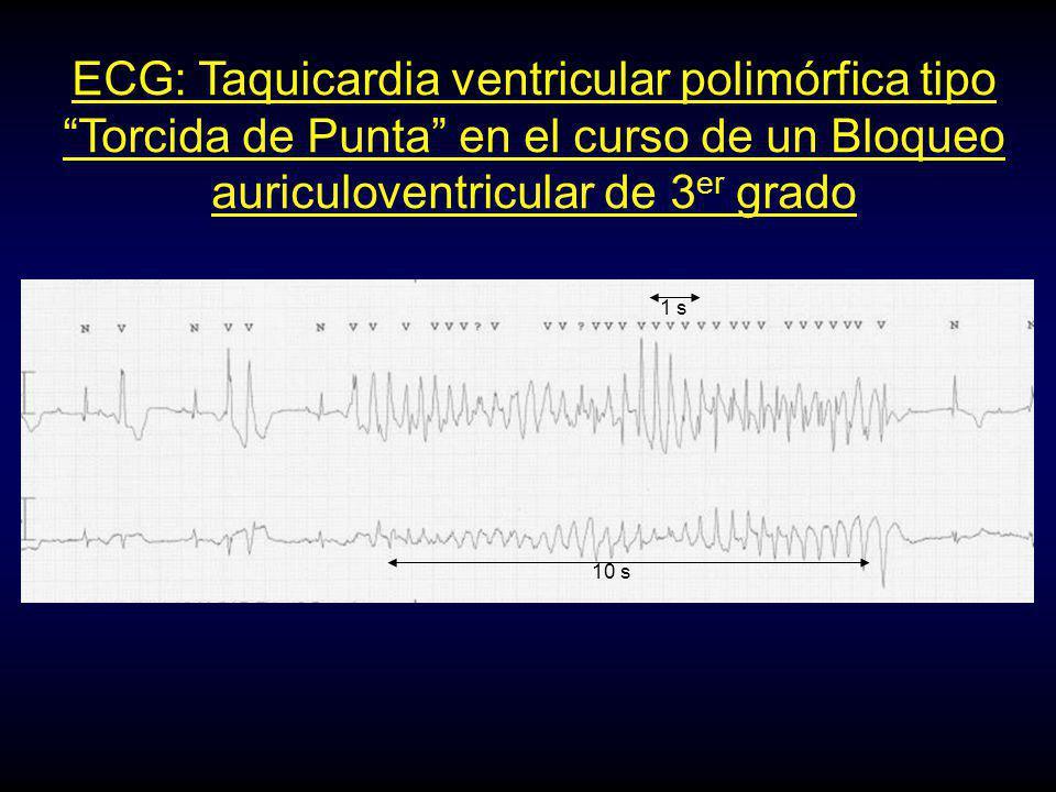 ECG: Taquicardia ventricular polimórfica tipo Torcida de Punta en el curso de un Bloqueo auriculoventricular de 3er grado