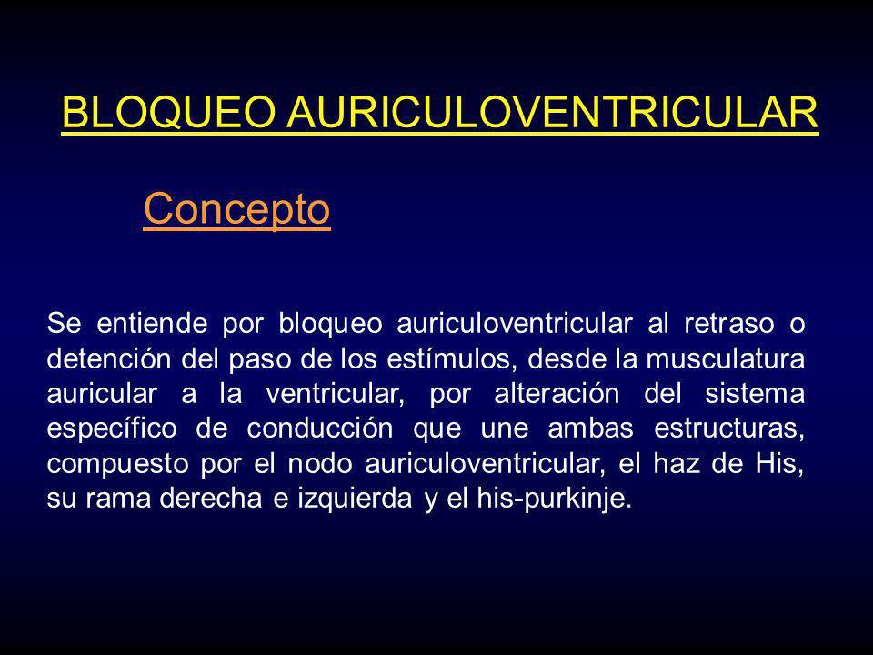 BLOQUEO AURICULOVENTRICULAR