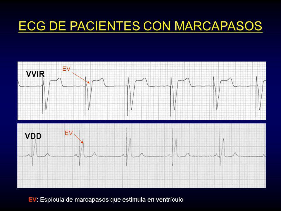 ECG DE PACIENTES CON MARCAPASOS