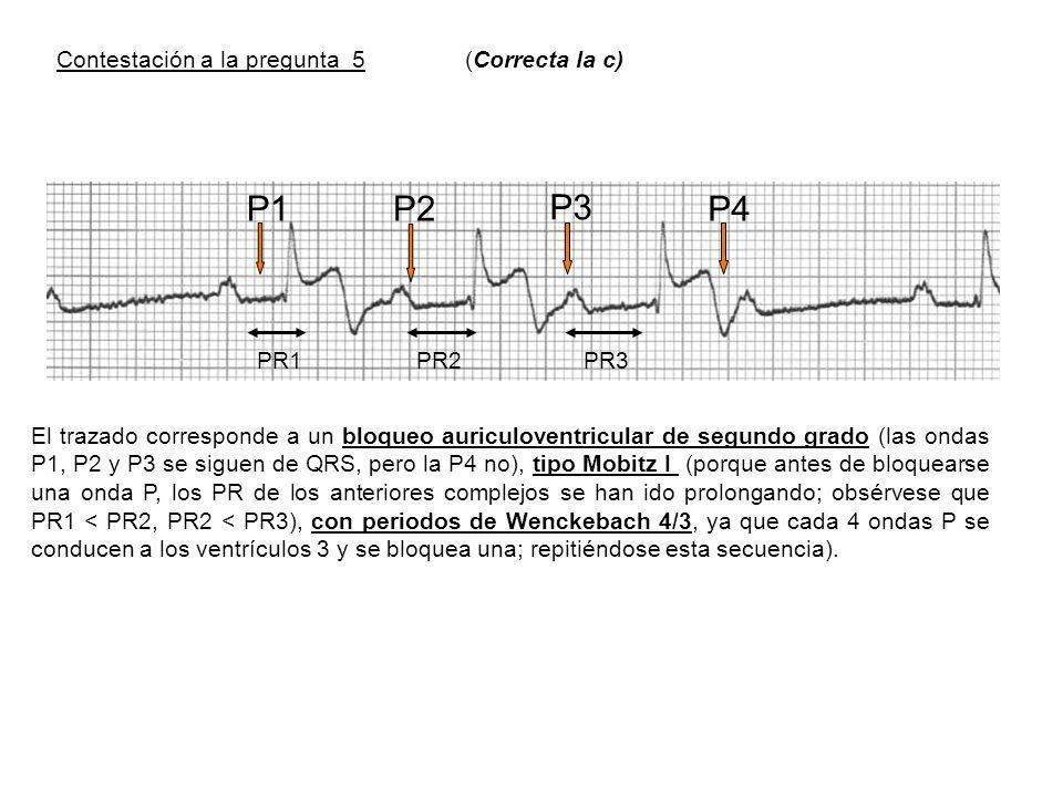 P1 P2 P3 P4 Contestación a la pregunta 5 (Correcta la c) PR1 PR2 PR3