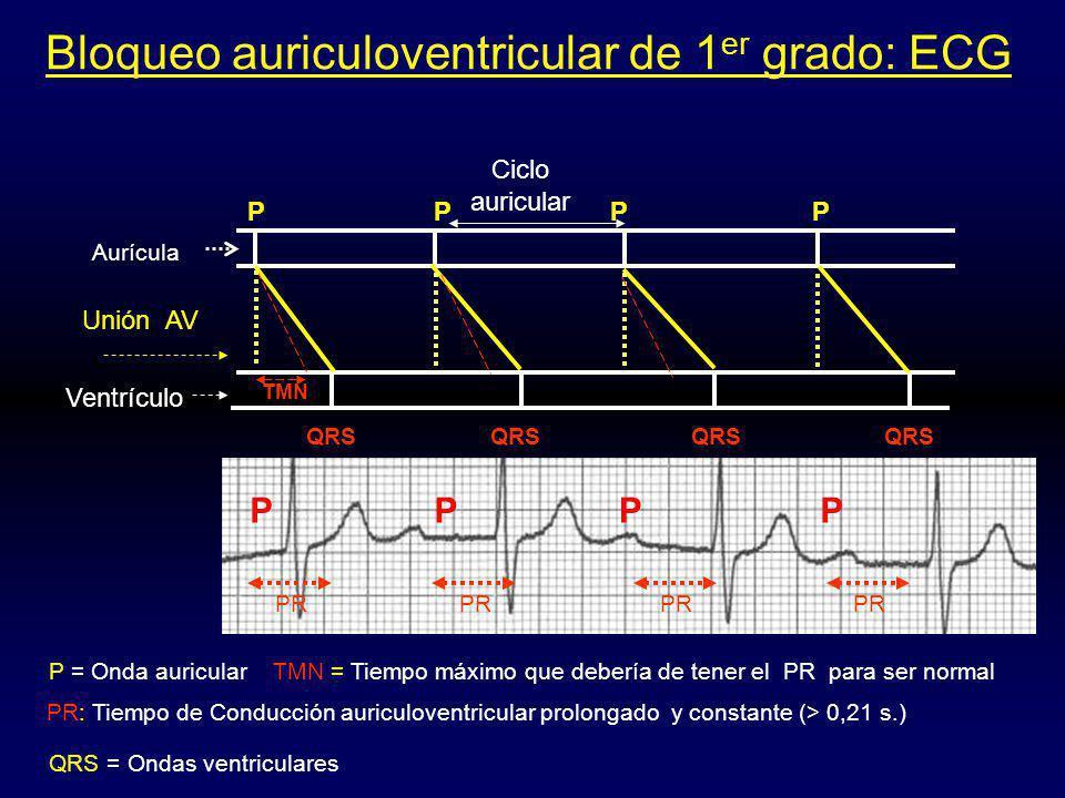 Bloqueo auriculoventricular de 1er grado: ECG