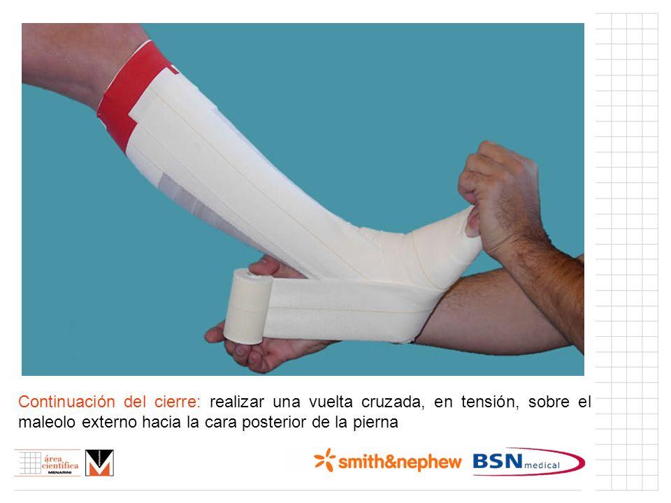 Índice (I) Continuación del cierre: realizar una vuelta cruzada, en tensión, sobre el maleolo externo hacia la cara posterior de la pierna.