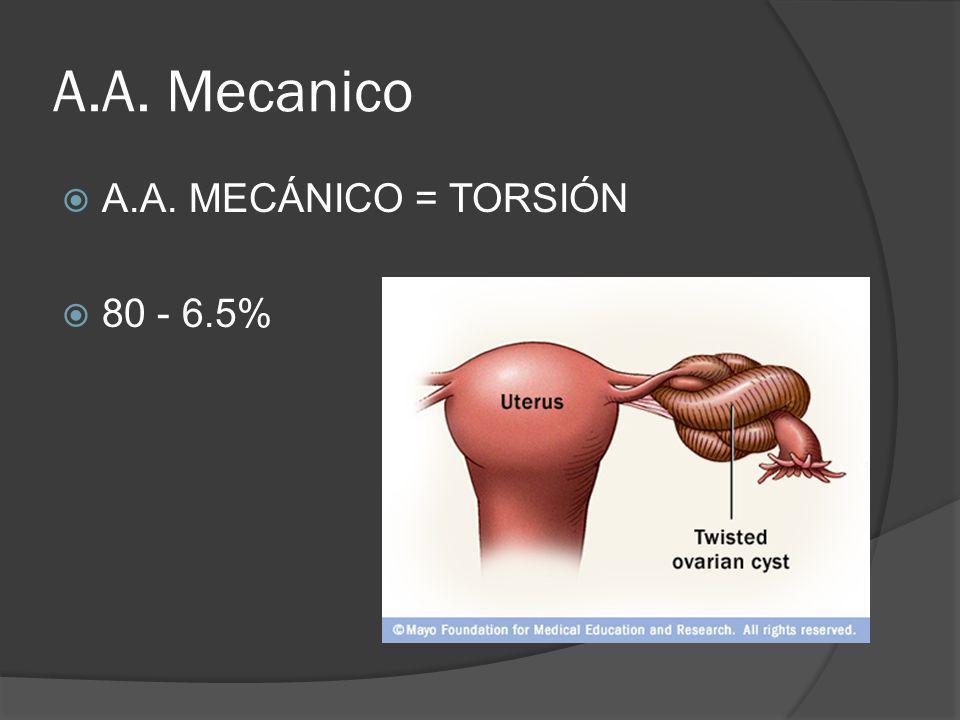 A.A. Mecanico A.A. MECÁNICO = TORSIÓN 80 - 6.5%