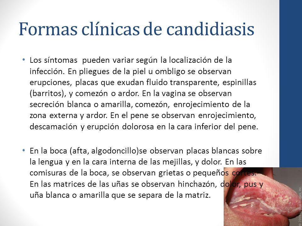 Formas clínicas de candidiasis