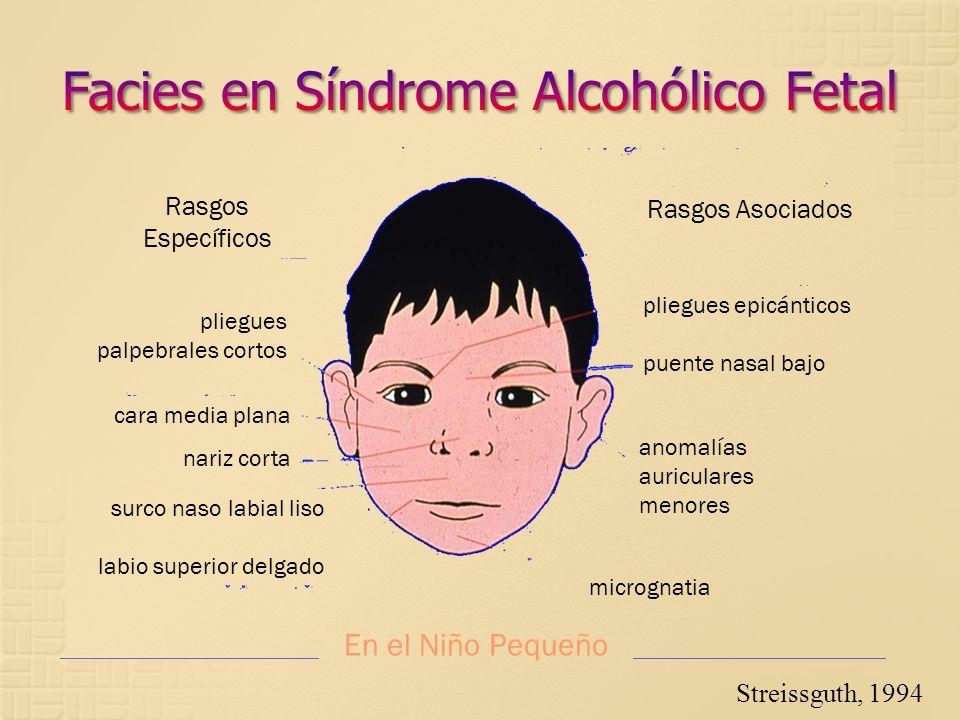 Facies en Síndrome Alcohólico Fetal