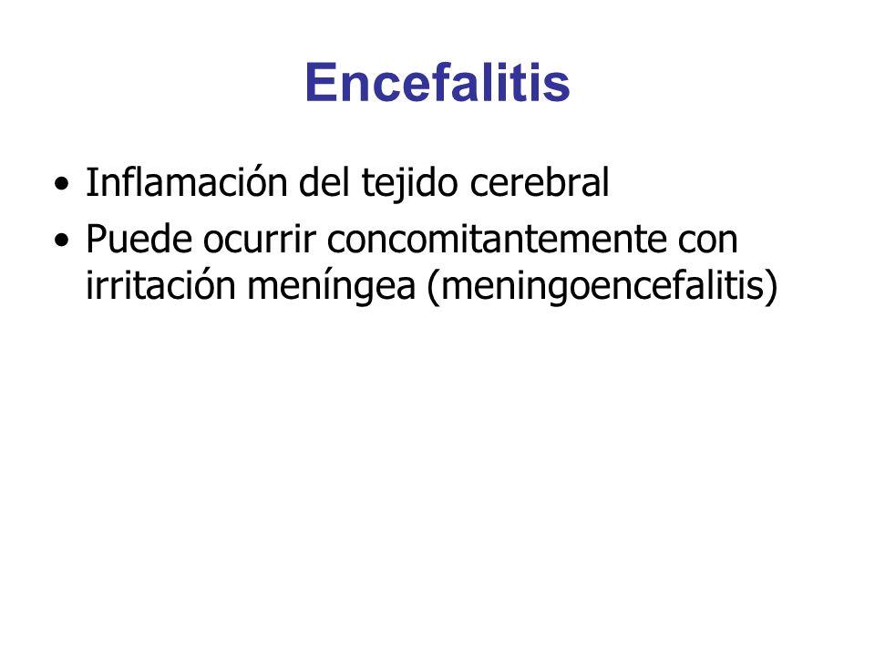 Encefalitis Inflamación del tejido cerebral