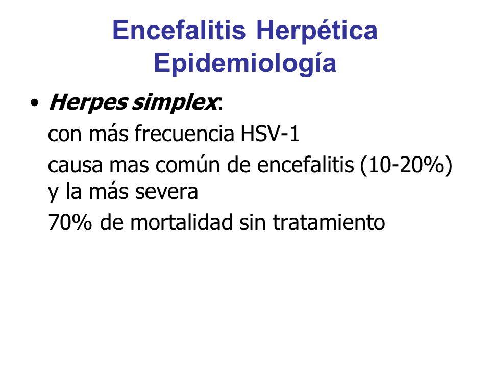 Encefalitis Herpética Epidemiología