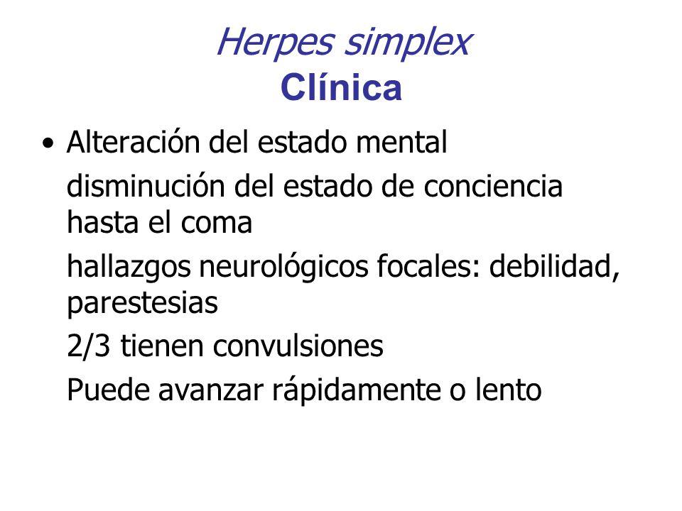 Herpes simplex Clínica