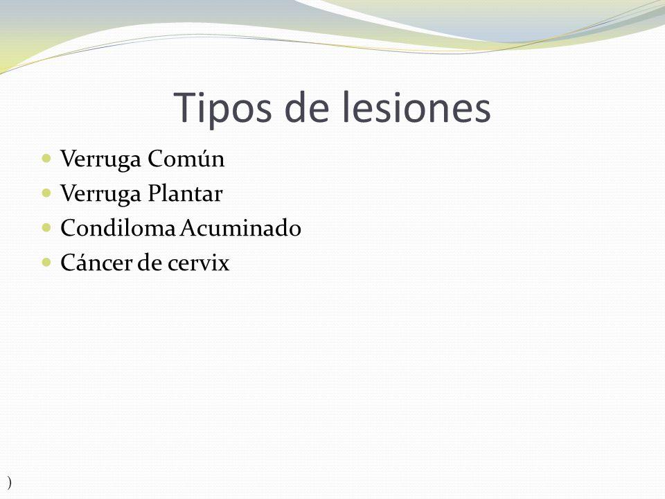 Tipos de lesiones Verruga Común Verruga Plantar Condiloma Acuminado
