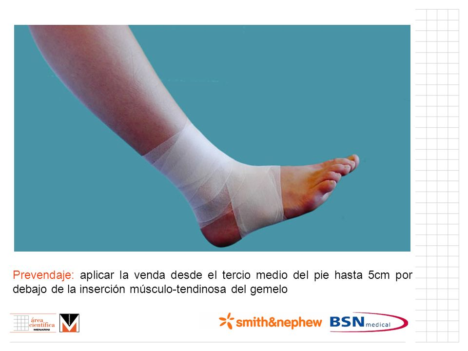 Índice (I)Prevendaje: aplicar la venda desde el tercio medio del pie hasta 5cm por debajo de la inserción músculo-tendinosa del gemelo.