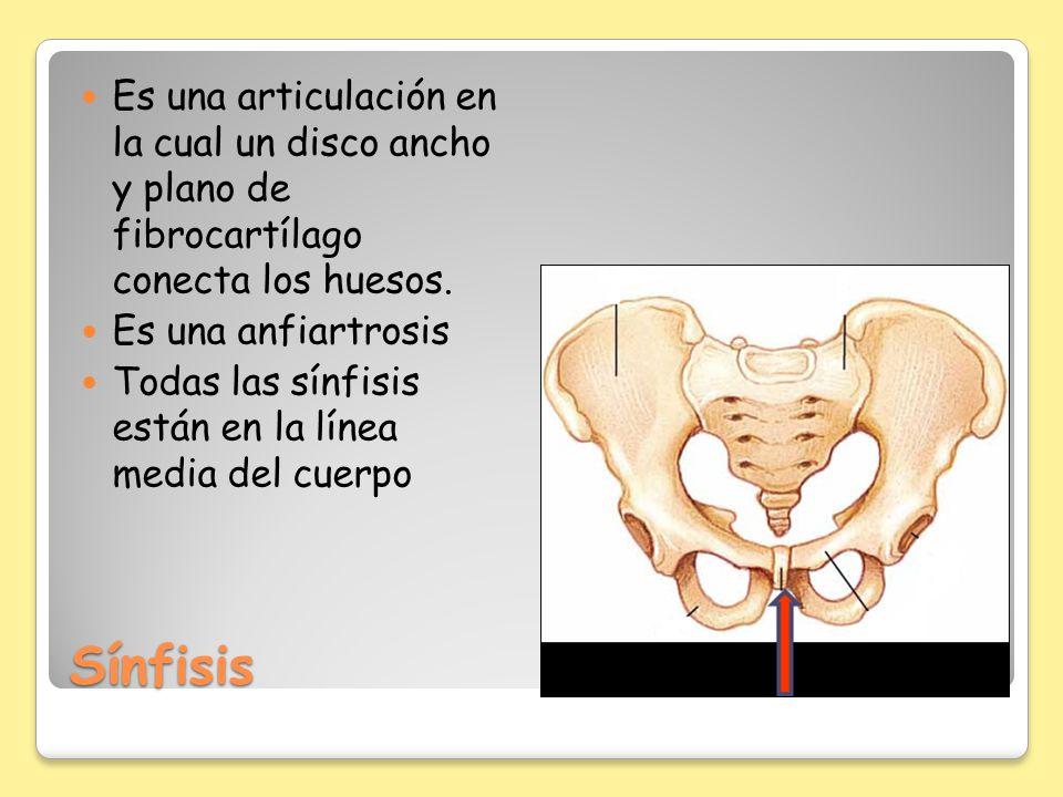 Es una articulación en la cual un disco ancho y plano de fibrocartílago conecta los huesos.