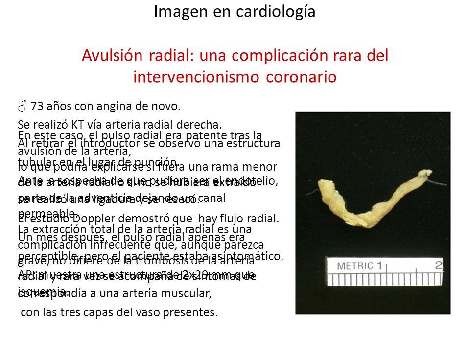Imagen en cardiología Avulsión radial: una complicación rara del intervencionismo coronario