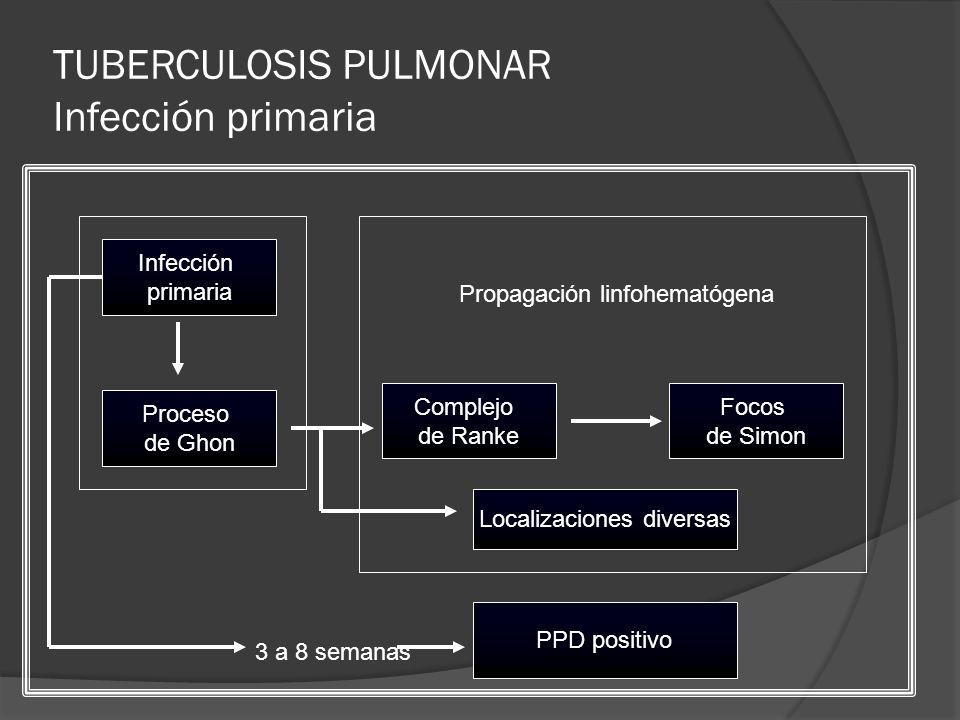 TUBERCULOSIS PULMONAR Infección primaria